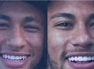 Neymar luce una nueva dentadura
