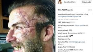 Beckham sufrió cambios en su rostro para interpretar su personaje