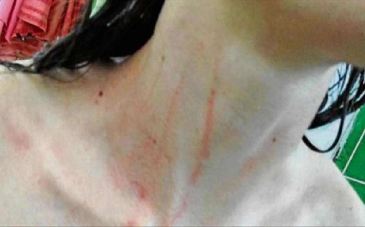 Ambas jugadoras sufrieron heridas en el cuello