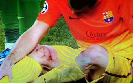Mascherano quedó lesionado y herido en Francia