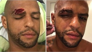 Felipe Melo mostró en las redes sociales cómo le quedó el rostro
