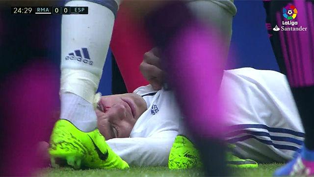 Video resumen: Kovacic quedo KO tras un choque con Diop