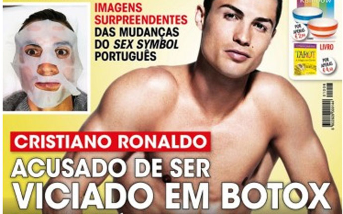 Cristiano Ronaldo, adicto al bótox