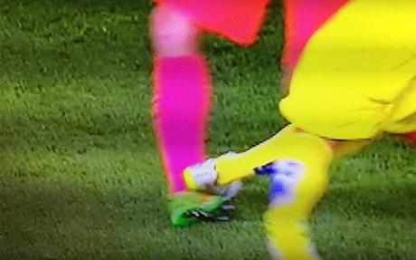 Busquets se lesion� de esta manera el tobillo derecho