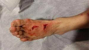 Herrera tuvo que recibir 17 puntos de sutura en su pie izquierdo