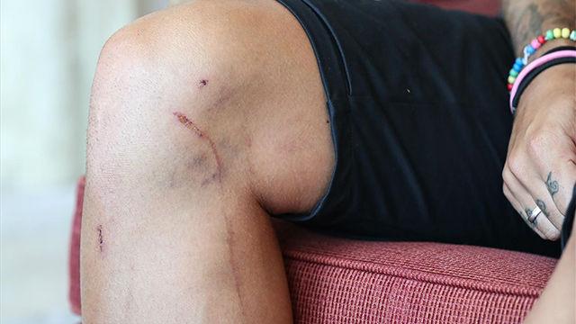 La imagen de la rodilla de Griezmann habla por sí sola