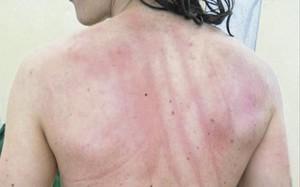 Las marcas de los golpes en la espalda eran más que evidentes