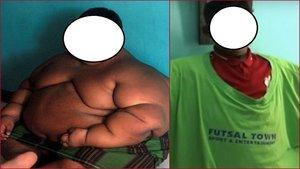 El impresionante cambio físico del Niño más gordo del mundo