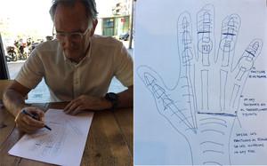 El dr. Mir nos dibujó cómo había reconstruido la mano del atleta