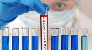 La empresa catalana Grifols comienza a producir su tratamiento contra el coronavirus