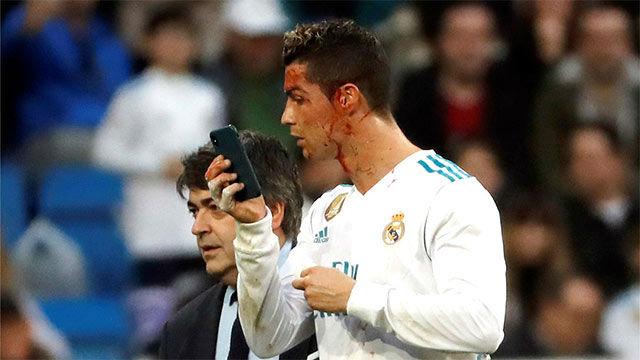 LALIGA | Real Madrid - Deportivo (7-1): Cristiano marcó y acabó sangrando