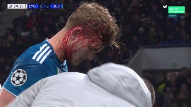 El impactante choque de De Ligt ante el Lyon antes de recibir un gol en contra