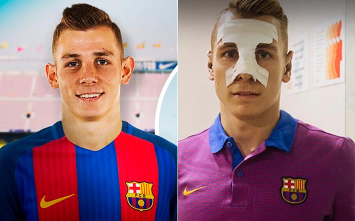 Image result for Antes de ser presentado en el FC Barcelona, Lucas Digne se opera la nariz…y las orejas!