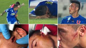 Fabián Monzón sufrió una herida muy aparatosa