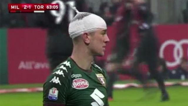 Hart dio el susto en el Milan - Torino y acabó con un vendaje en la cabeza